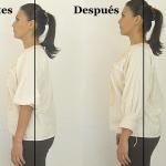 antes y despues omoplatos