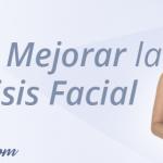 paralisis facial-SM